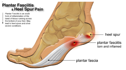 Plantar Fasciitis | Moreton Hall Health Club on planters warts, planters phasiatis com, planters facetious treatment of symptoms, planters feet pain,